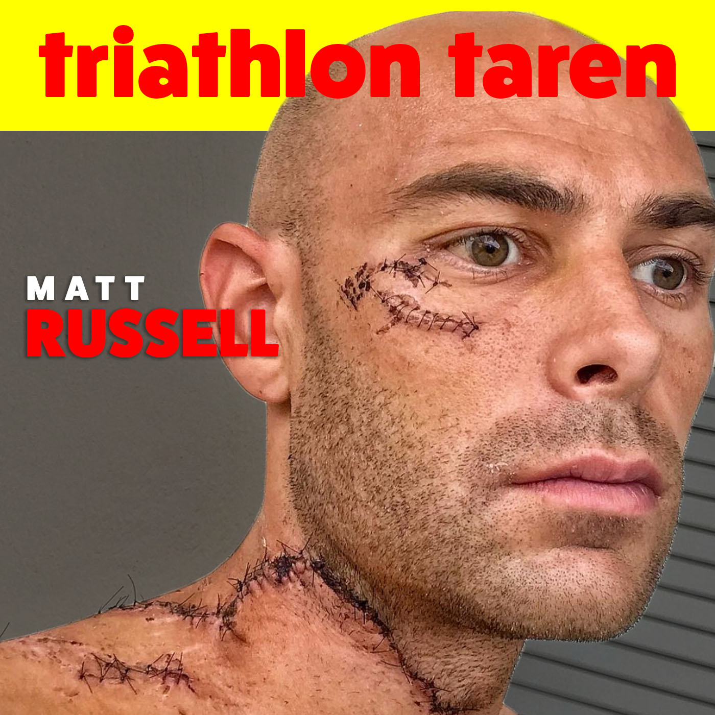 Unbelievable comeback after horrific accident in Kona 2017| Pro Triathlete Matt Russell